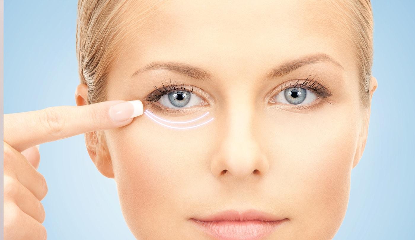 Как избавиться от отеков под глазами: причины и лечение 67